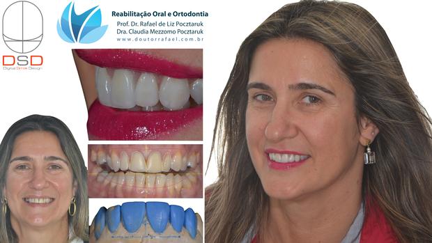 Digital Smile Design-calgaro